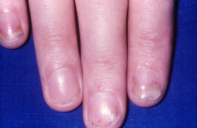 how is nail psoriasis caused