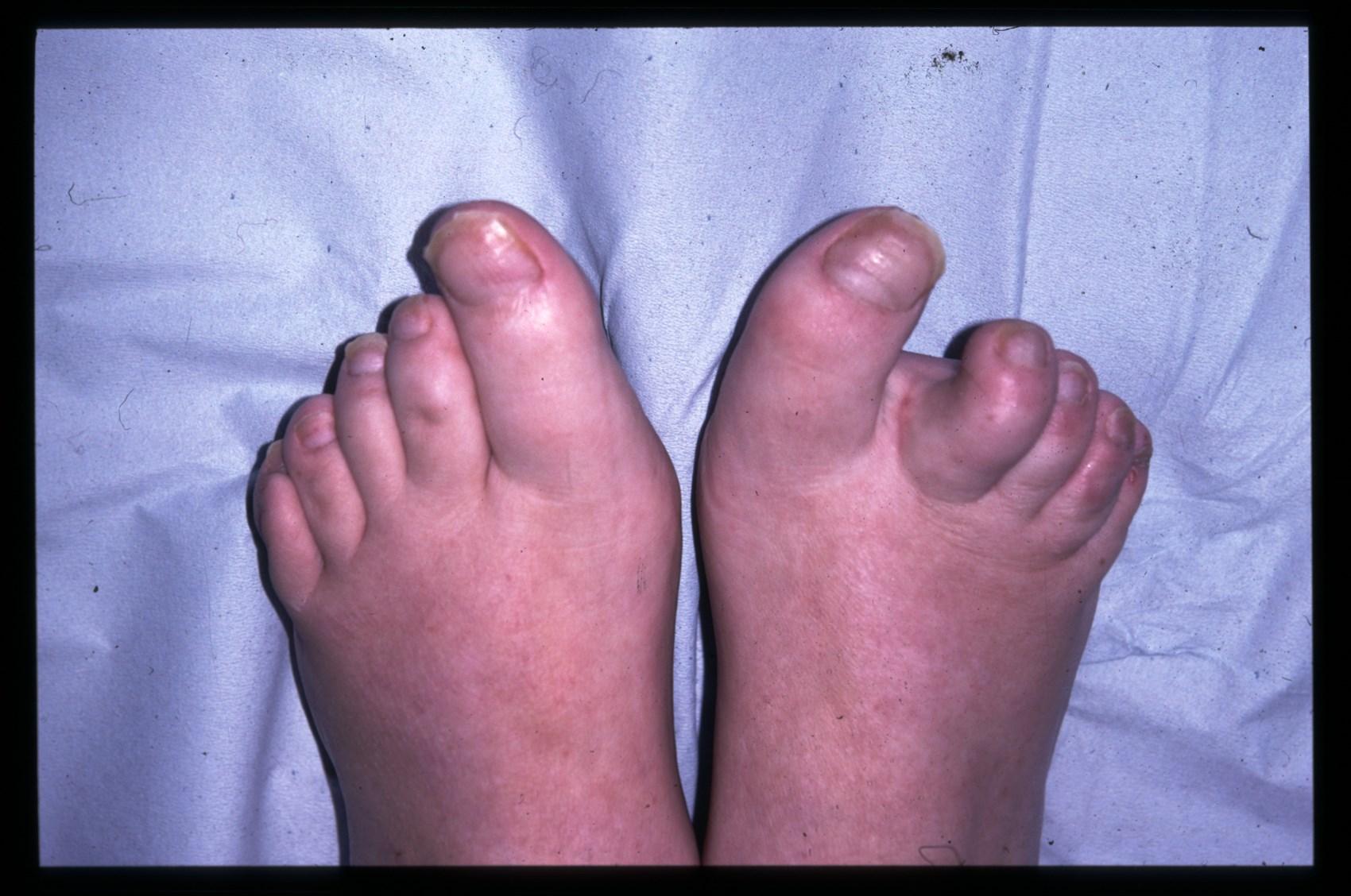 psoriasis on feet help kenőcs pikkelysömörhöz népi gyógymódokkal