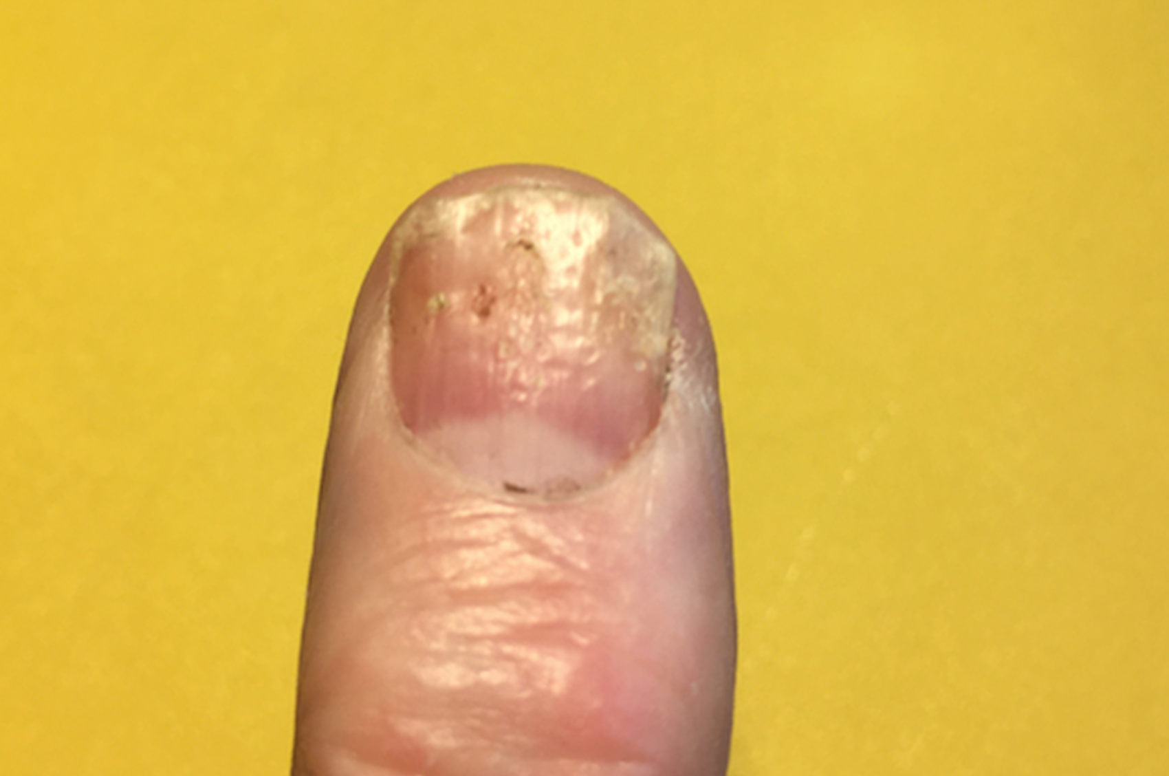 is nail psoriasis painful