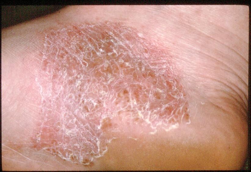 plaque psoriasis foot treatment)