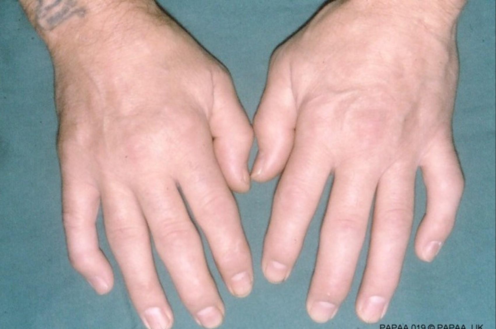 a láb ízületeinek gyulladásának tünetei ízületi gyulladás a láb gyógyszere